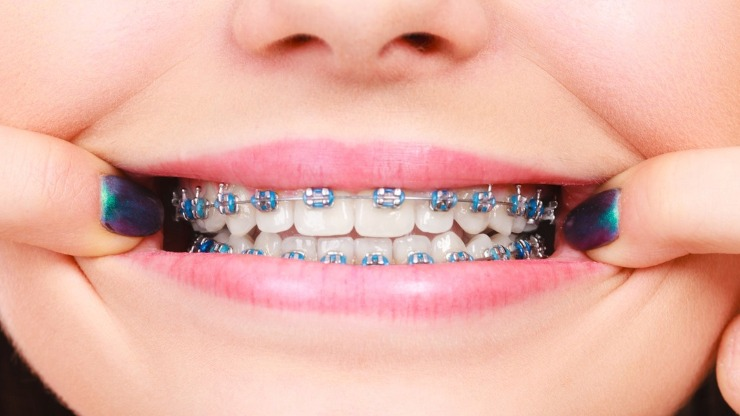 How Much is the Average Cost of Braces For Teeth?