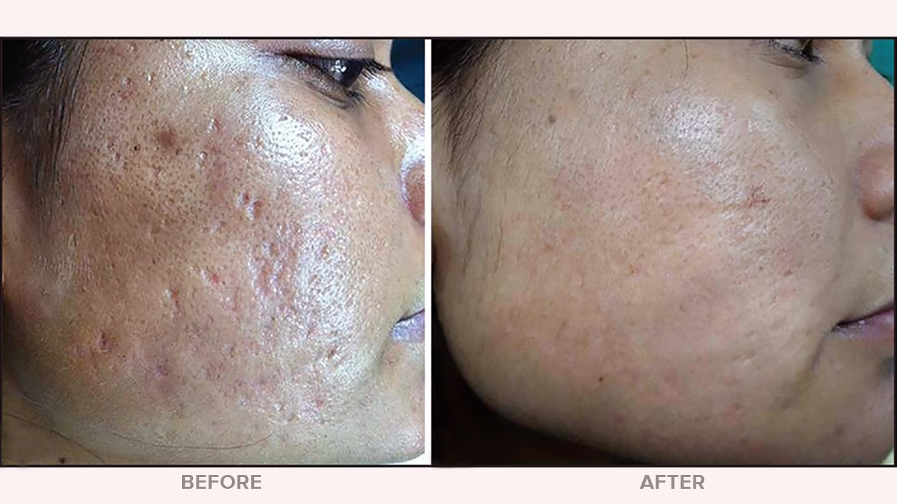 How Much Does Microdermabrasion Cost?