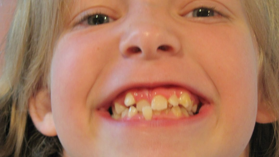 How Much do Braces Cost for Kids and Adults?