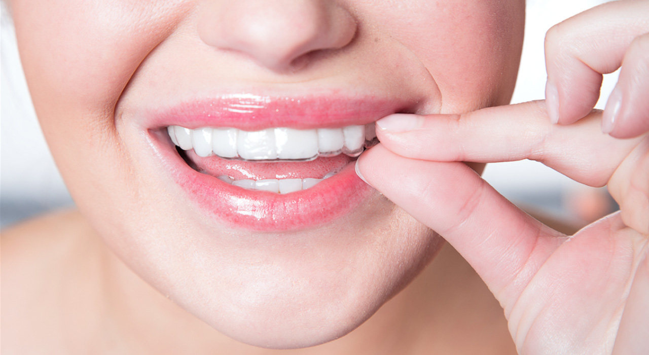 How Much do Invisalign Tooth Aligners Cost?