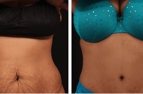How much does a tummy tuck cost?