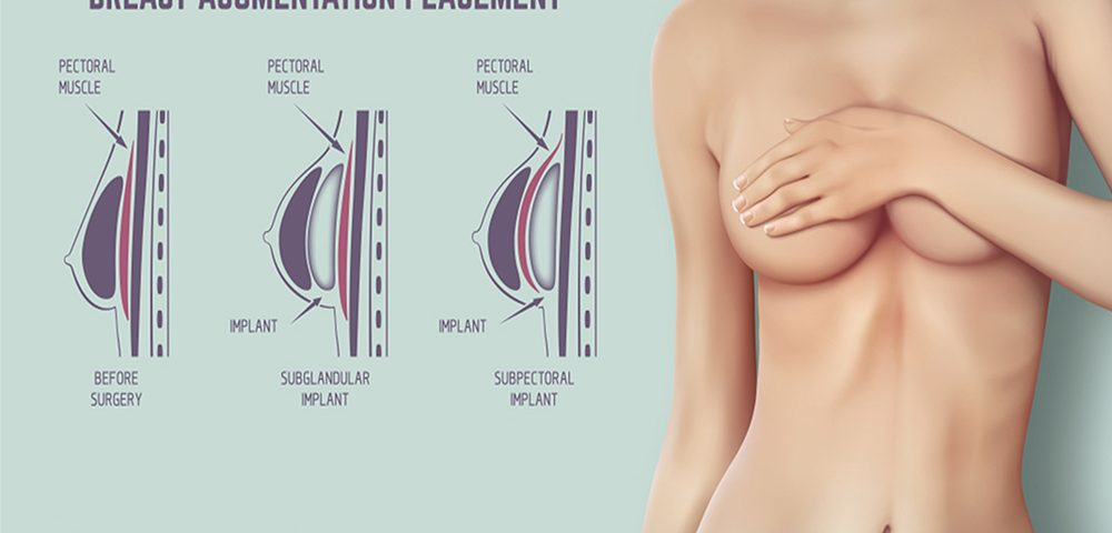 How Much Do Breast Implants Cost?
