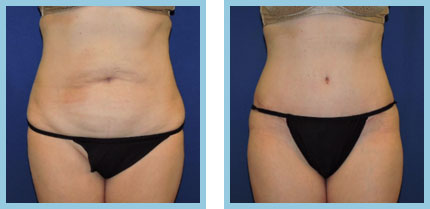 How Much is a Tummy Tuck?