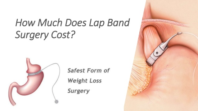 What is the Cost of Lap Band Surgery?