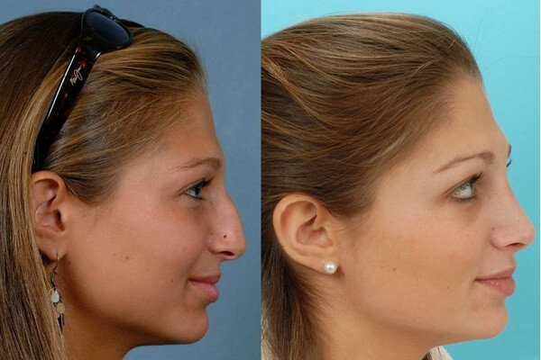 How Much Does a Nose Job Cost?